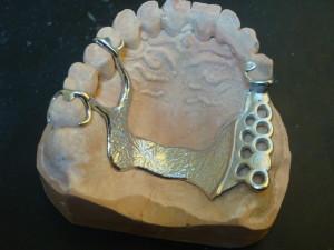 3-szkielet-jednostronny-szczeka-metal-300×225